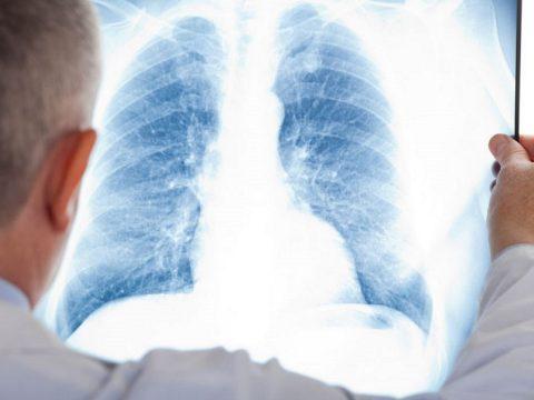 Romániában és Bulgáriában a legkisebb a rák okozta halálesetek aránya az EU-ban