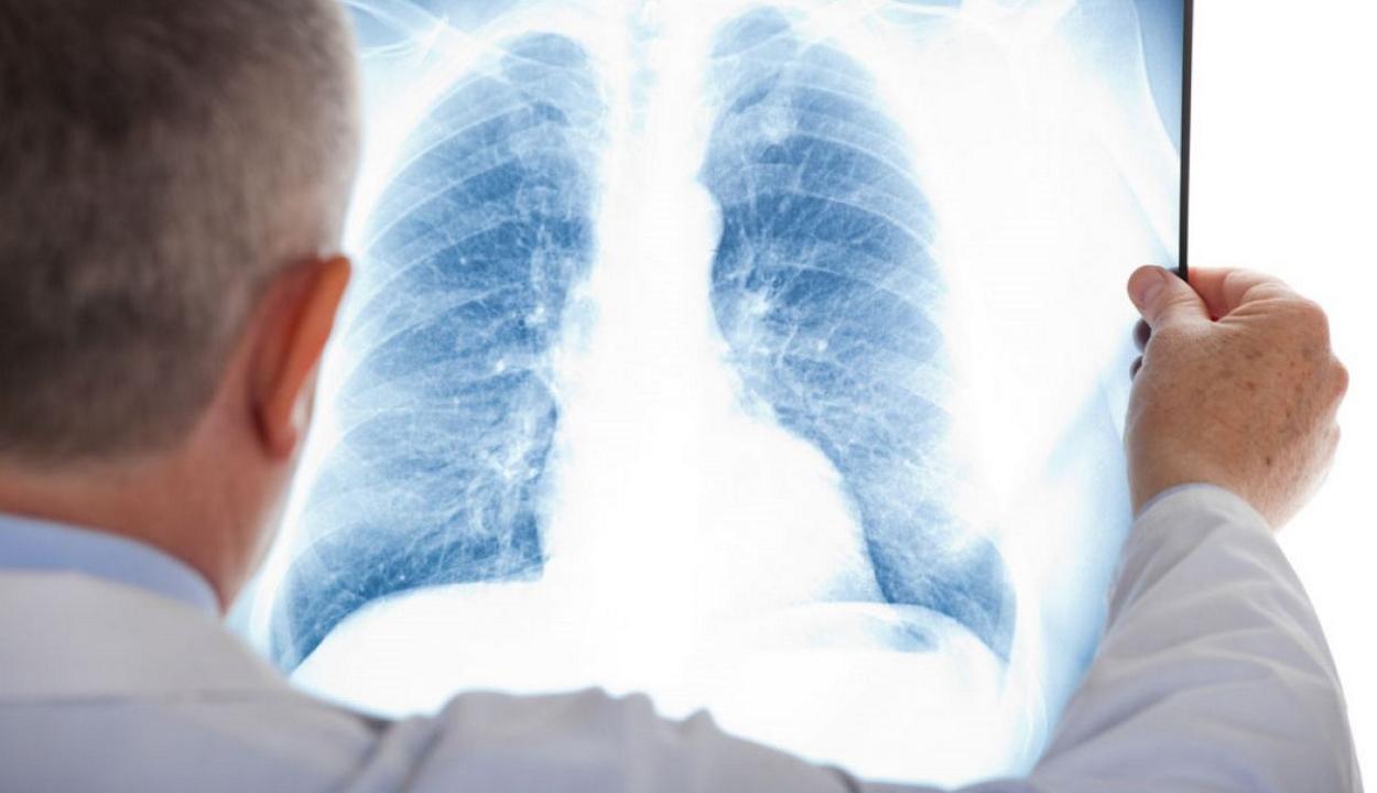 A tüdőrák új szűrővizsgálatát fejlesztették ki izraeli tudósok