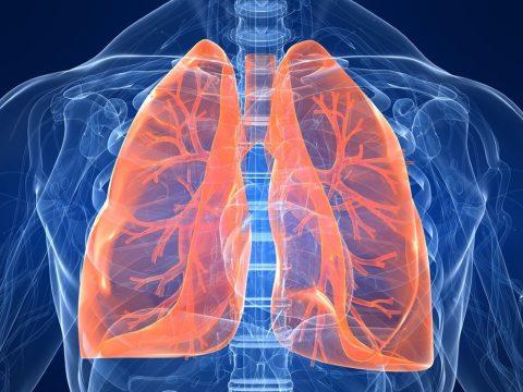 Tüdőrákban halt meg egy nő, akibe egy dohányos tüdejét ültették át