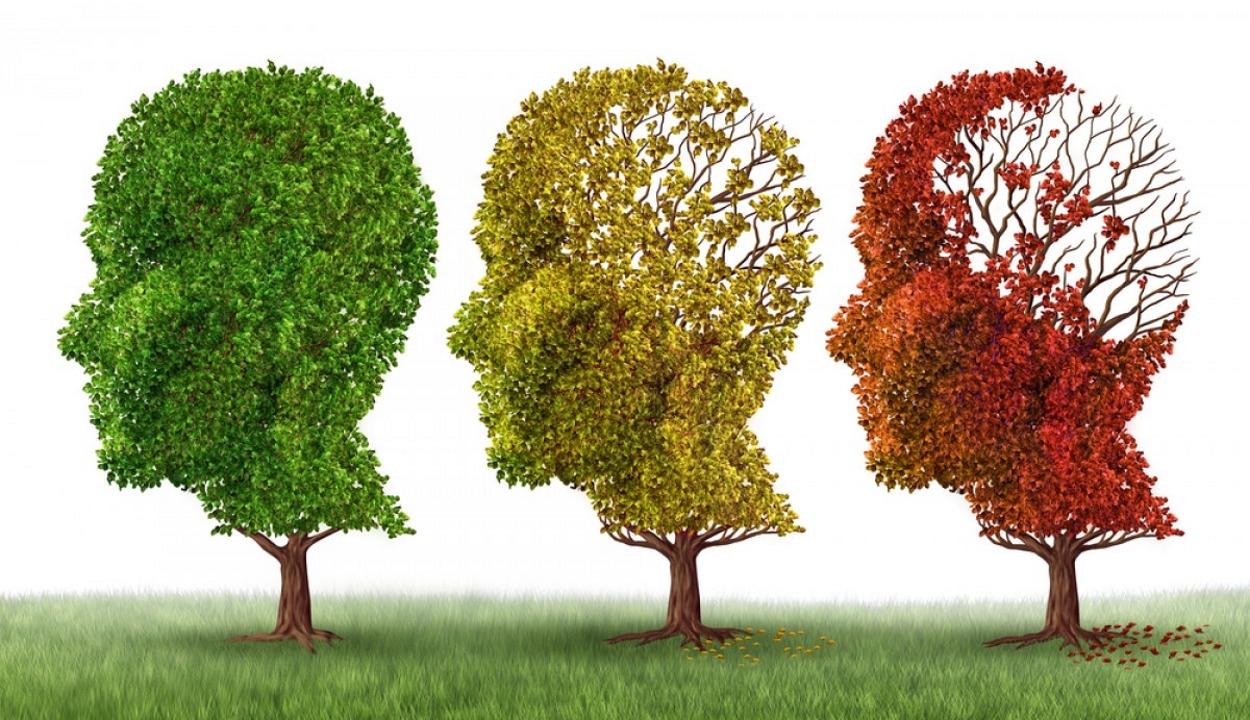 Kutatók visszafordították az Alzheimer-kór legsúlyosabb tüneteit