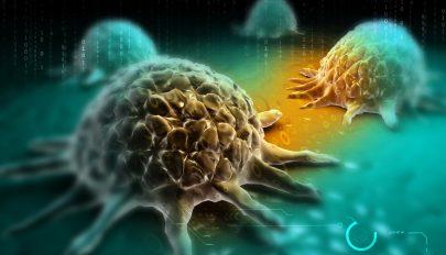 Rákkutató: a genetika csak 5-10 százalékban felelős a daganatok megjelenéséért