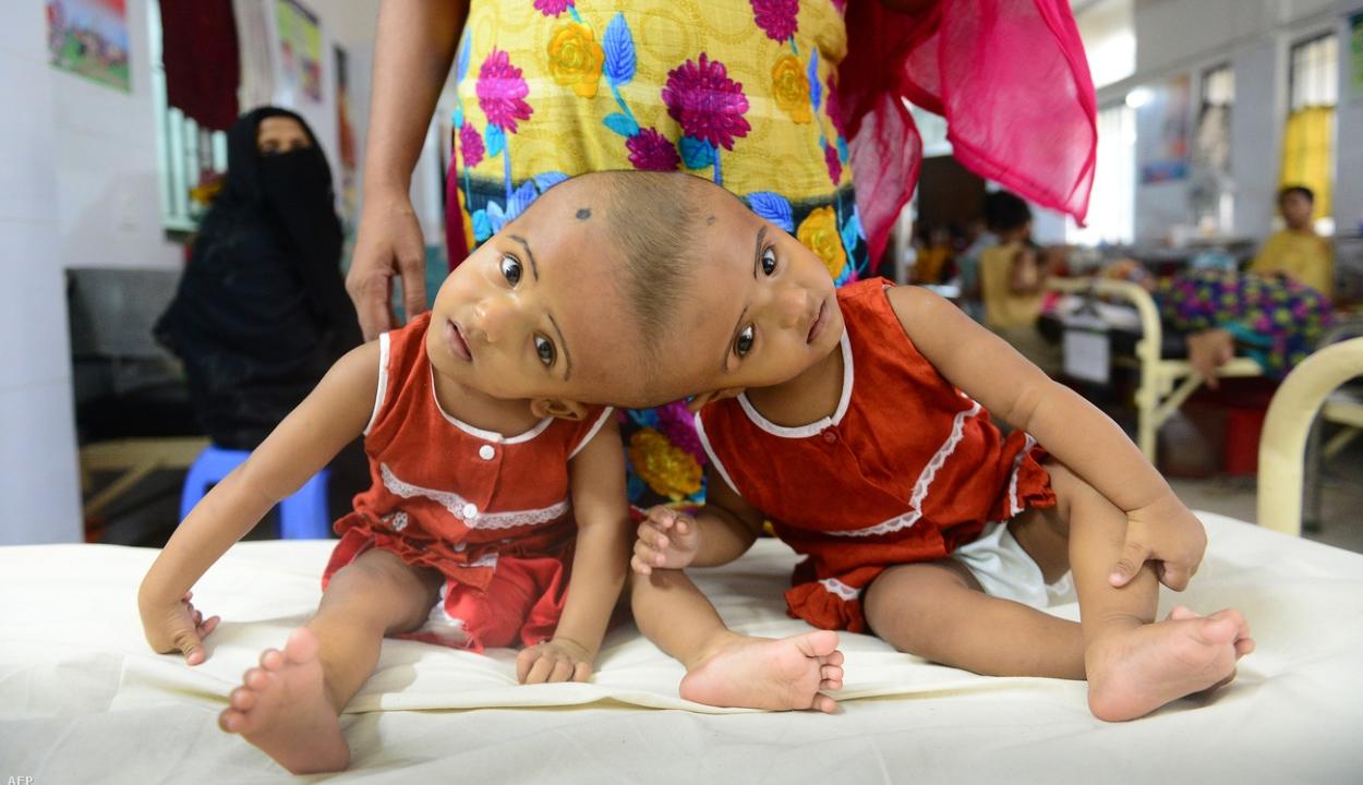 Fejüknél összenőtt bangladesi sziámi ikreket műtöttek meg Budapesten