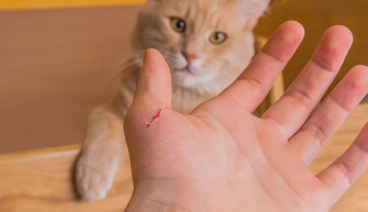 Mentális zavarokat okozott a macskakarmolás egy amerikai tinédzsernél