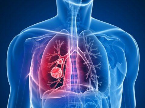 Csökkent a rák okozta halálozások aránya az Európai Unióban