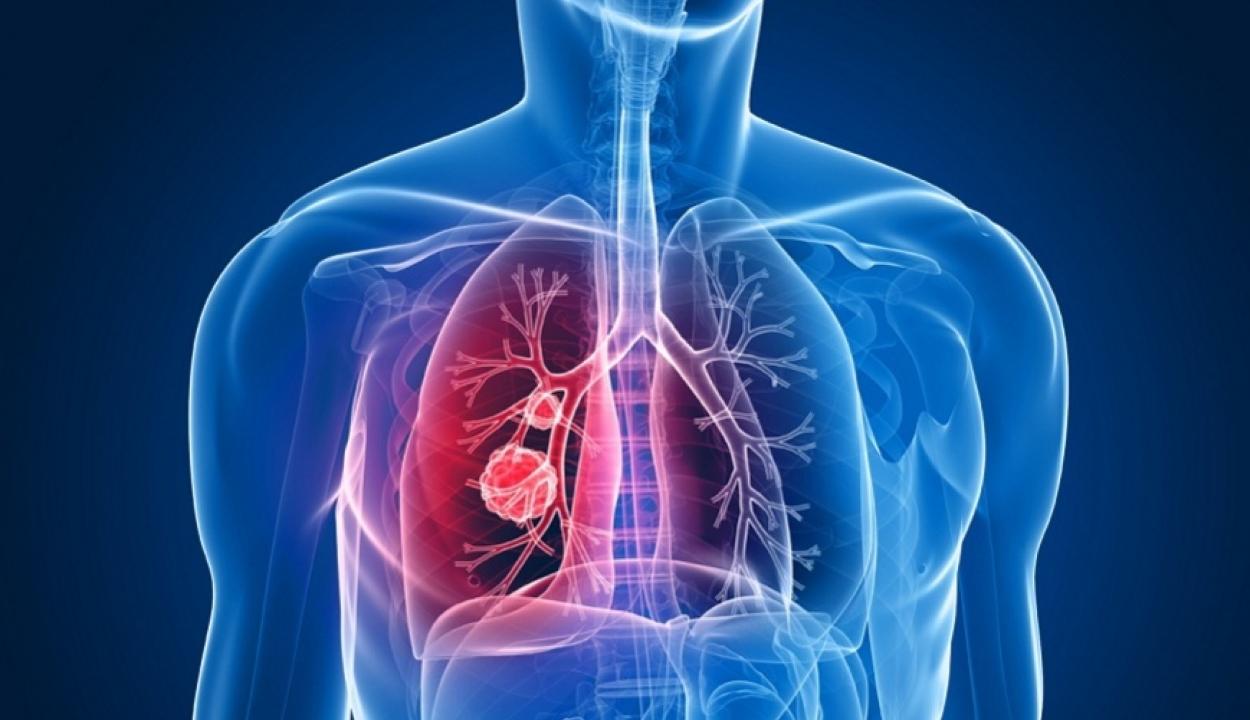 Több mint 11 ezer új tüdőrák-esetet jegyeztek tavaly Romániában