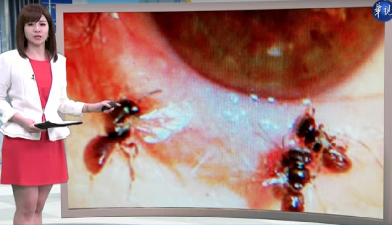 Négy méhet szedtek ki egy tajvani nő szeméből