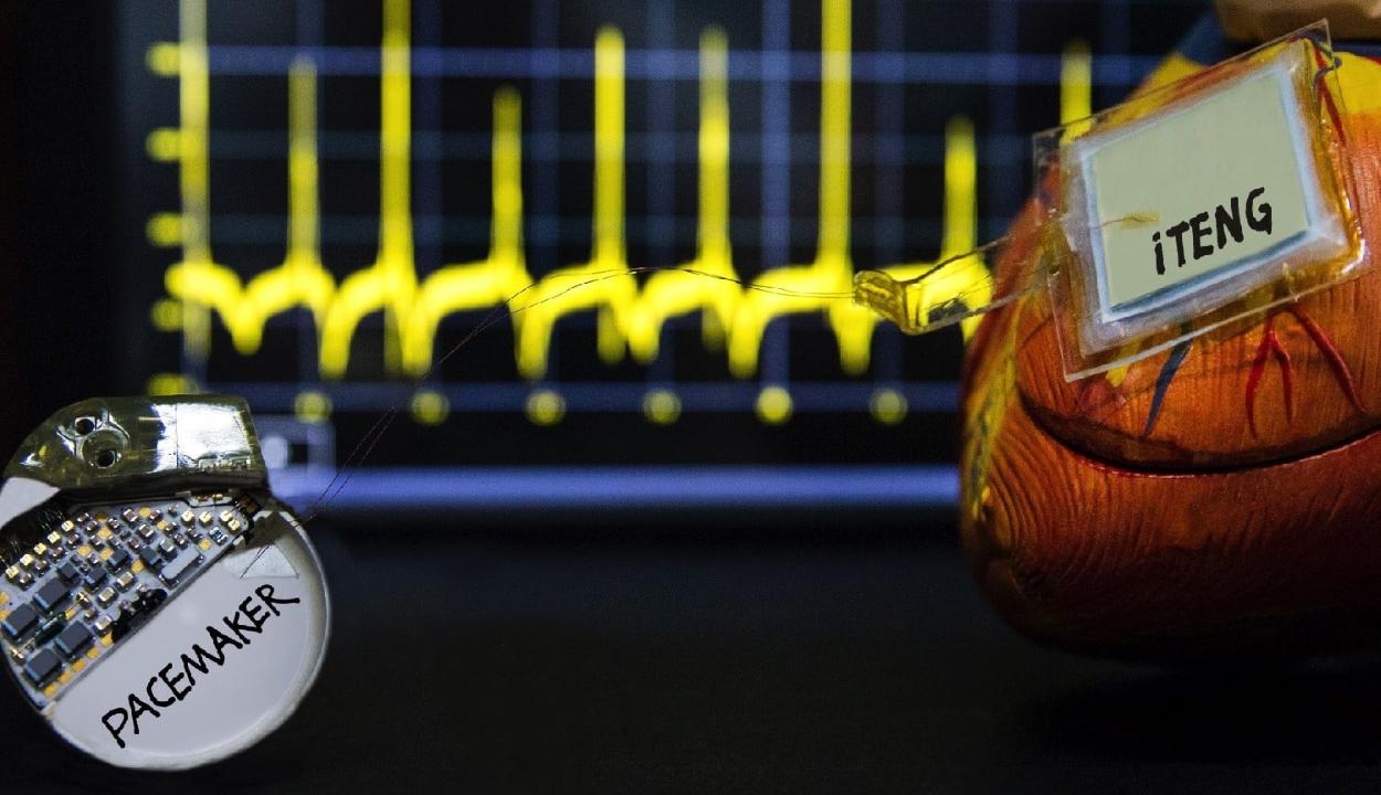 A szívverés energiájával működő pacemakert fejlesztettek ki