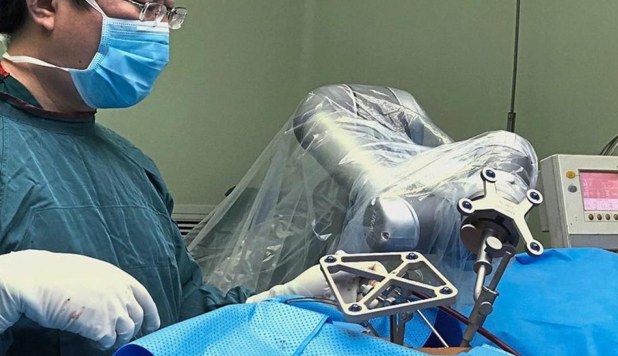 5G-s technológiával végeztek távirányított robotsebészeti műtétet