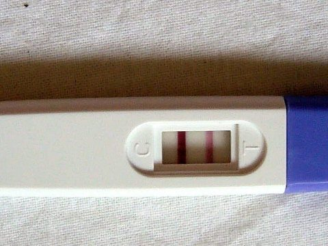 Az abortusz legalizálását tervezi az új-zélandi kormány