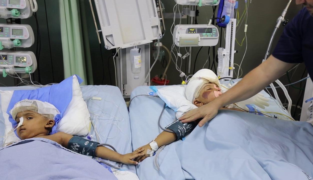 Még évekig eltarthat a szétválasztott bangladesi sziámi ikrek rehabilitációja