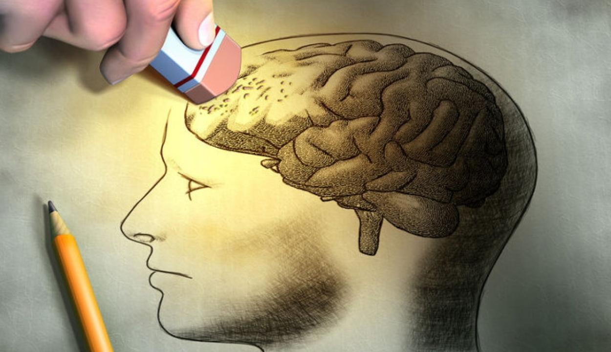 A rendszeres aerobikedzés megakadályozhatja az időskori Alzheimer-kór kialakulását