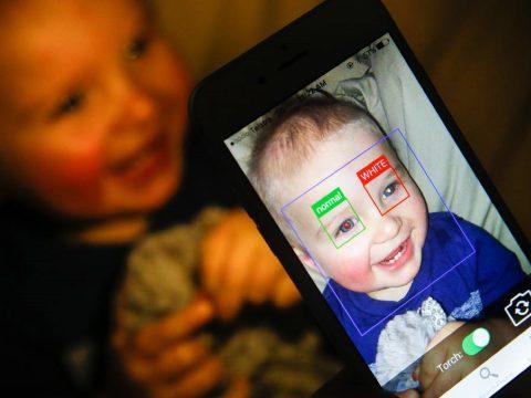 Egy ingyenes applikációval időben kiszűrhetők a szem daganatos betegségei