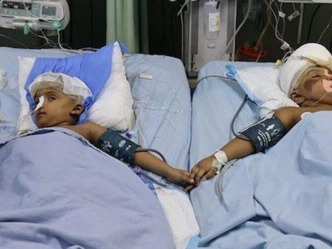 Védősisakot kell viselniük a szétválasztott bangladesi sziámi ikreknek