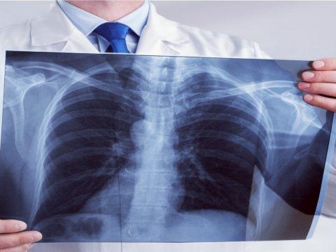 Tüdőgyógyász: a betegek öt százalékánál alakul ki tüdőgyulladás