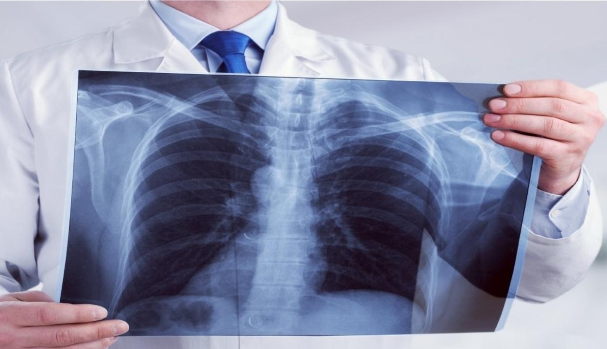 A tipikusnál tovább tart a koronavírus okozta tüdőgyulladás