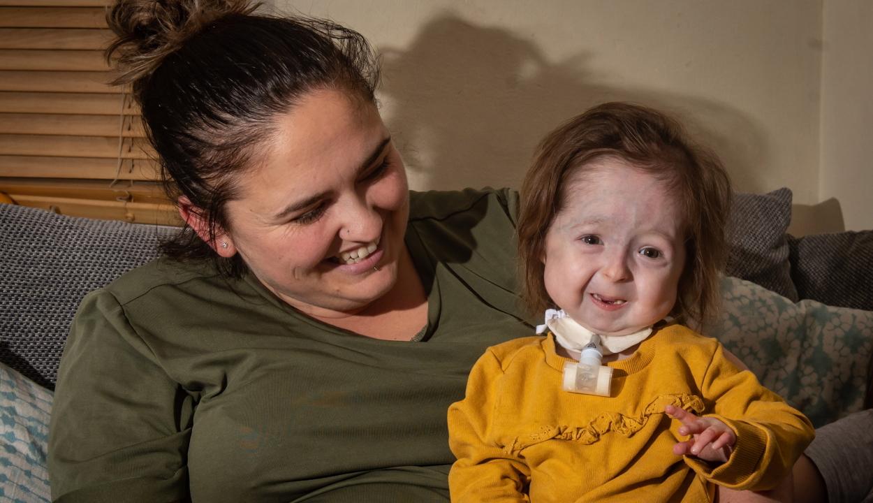 Benjamin Button-szindrómában szenved egy brit kislány