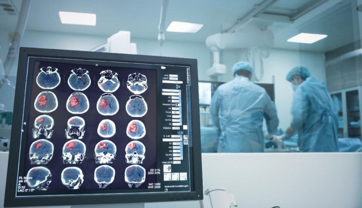 Agyi műtéttel javítható a Parkinson-kóros betegek állapota