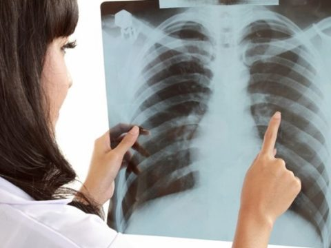Az EU-ban először indul nemzeti tüdőrák-szűrőprogram