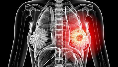 Génszerkesztéssel állították meg az egyik legagresszívebb mellrák terjedését