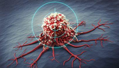 Már tesztelik a rák elleni vakcinát