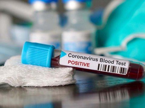 Új algoritmus alapján választják ki, hogy kiken végzik el a koronavírus-tesztet