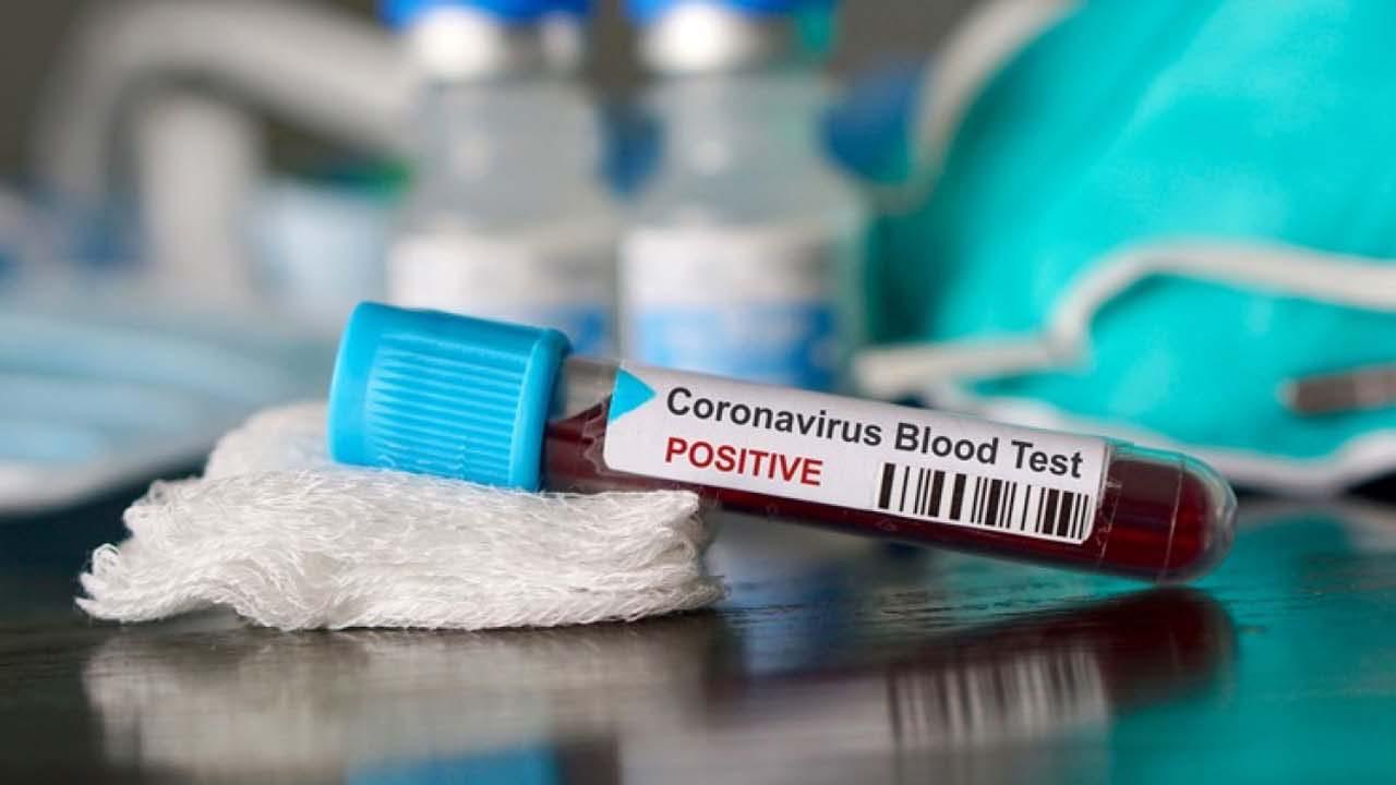 Két orvos is vállalta már pozitív tesztjét