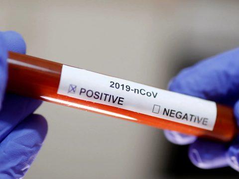 Közegészségügy: 149 koronavírusos eset van a megyében