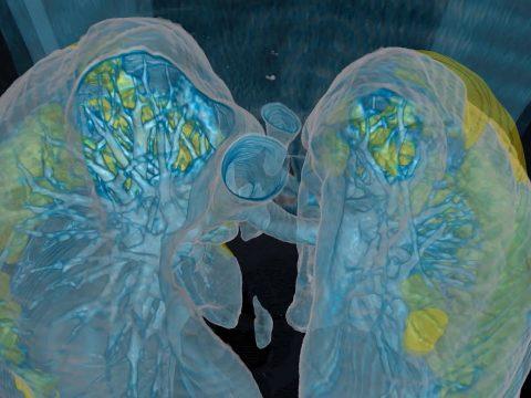 A teljes tüdőt letámadja a koronavírus