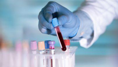 Több mint 50 típusát mutathatja ki a ráknak egy új vérvizsgálat