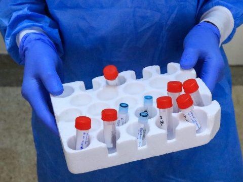Frissítették a COVID-19-cel kapcsolatos esetdefiníciókat