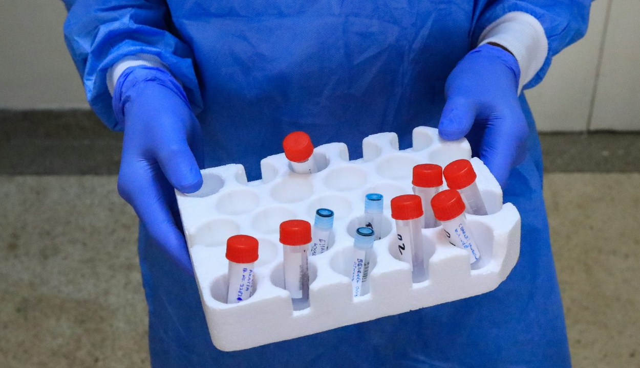 Szexuális úton is terjedhet a koronavírus egy kínai kutatás szerint