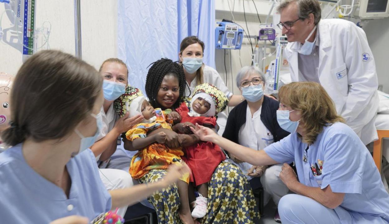 Koponyájuk hátsó részénél összenőtt ikreket választottak szét a vatikáni kórházban