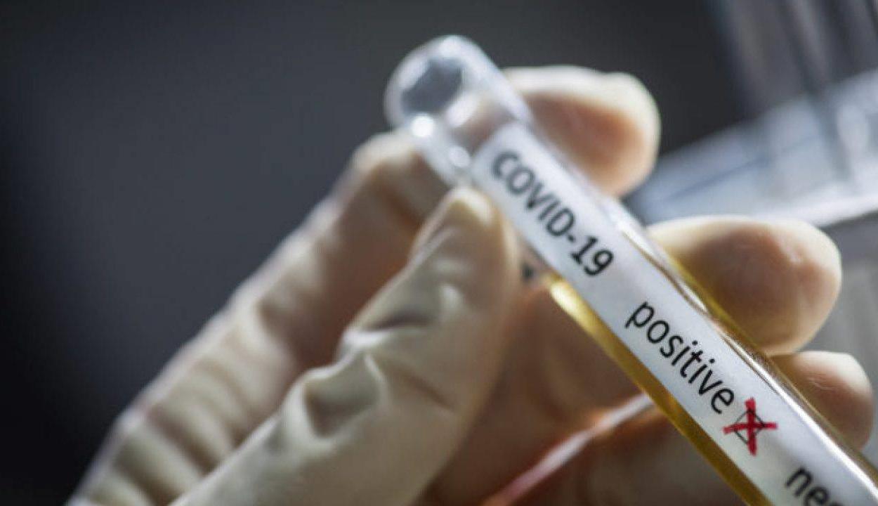 4761 új koronavírusos megbetegedést jelentettek az elmúlt 24 órában
