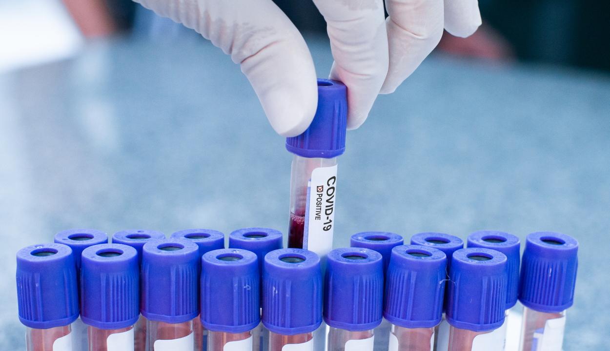 4942 új koronavírusos megbetegedést jelentettek 39.510 teszt elvégzése nyomán