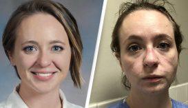 Hogyan néz ki egy ápoló 8 hónapnyi munka után egy Covid-kórházban