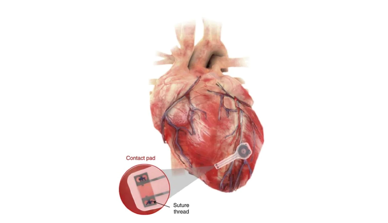 Felszívódó, átmenetileg használatos pacemakert fejlesztettek ki