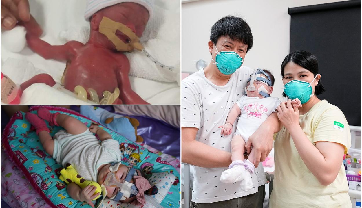 Egy év után hazavihették szülei a világ legkisebb újszülöttjeként világra jött babát